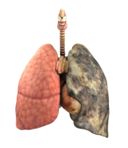 A set of lungs, before and after a lifetime of smoking